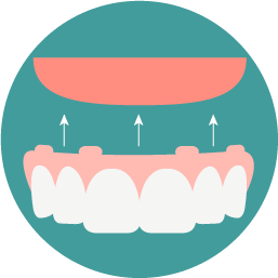 Full & Partial Dentures